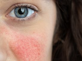 The Psychological Effects Of Acne – Get the best treatment